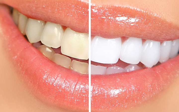 services_whitening